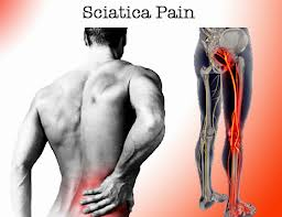sciatica explained by witney chiropractor