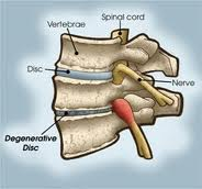 spinal degenerative disease explained by whitney chiropractor